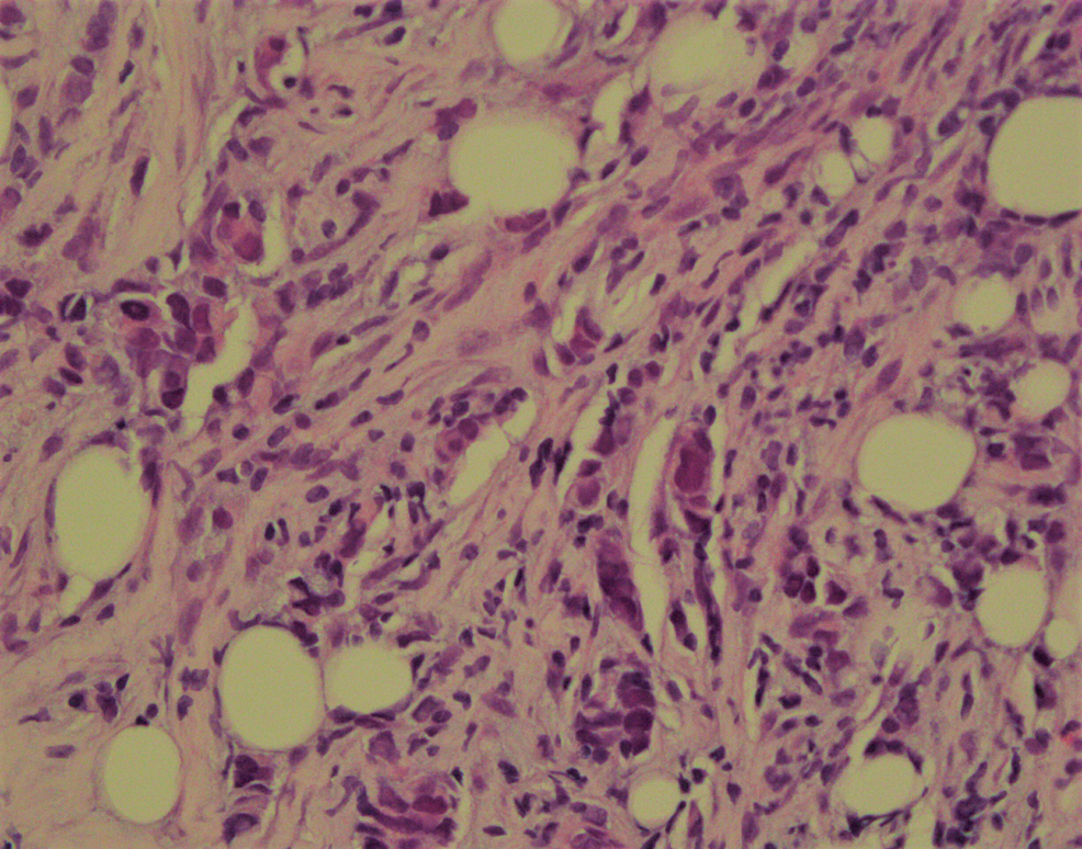 Invasive-poorly-differentiated-ductal-carcinoma.-Nottingham-Grade-3-of-3