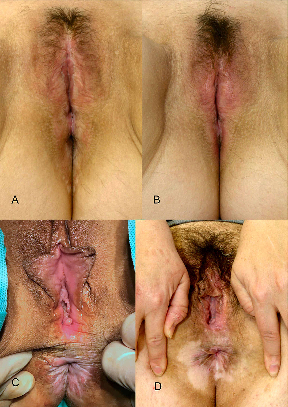 Preoperative-and-postoperative-results-after-24-months-and-one-single-treatment.