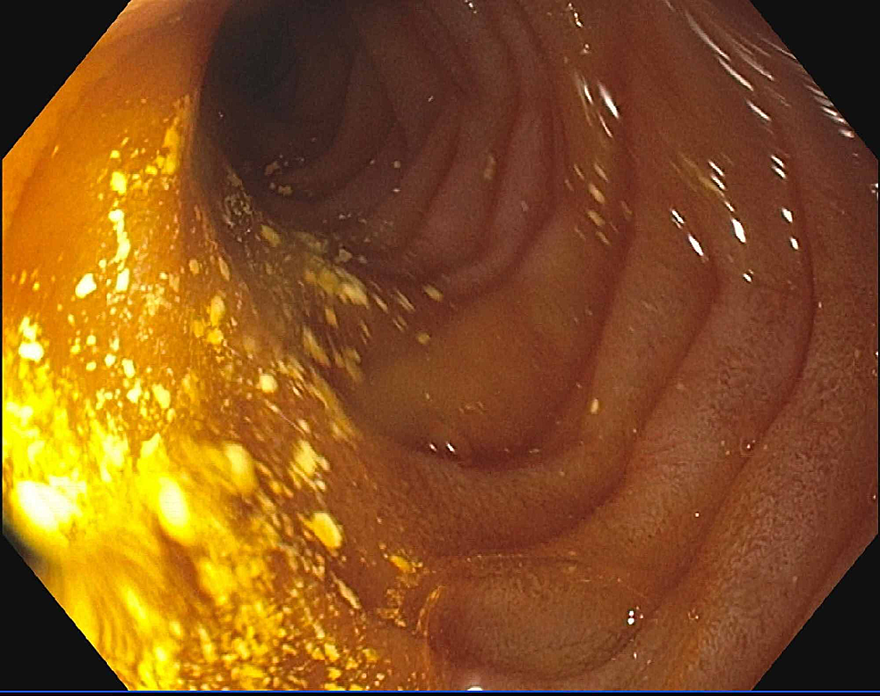 Findings-from-upper-endoscopy-showing-edematous-mucosa-in-the-duodenum-and-jejunum