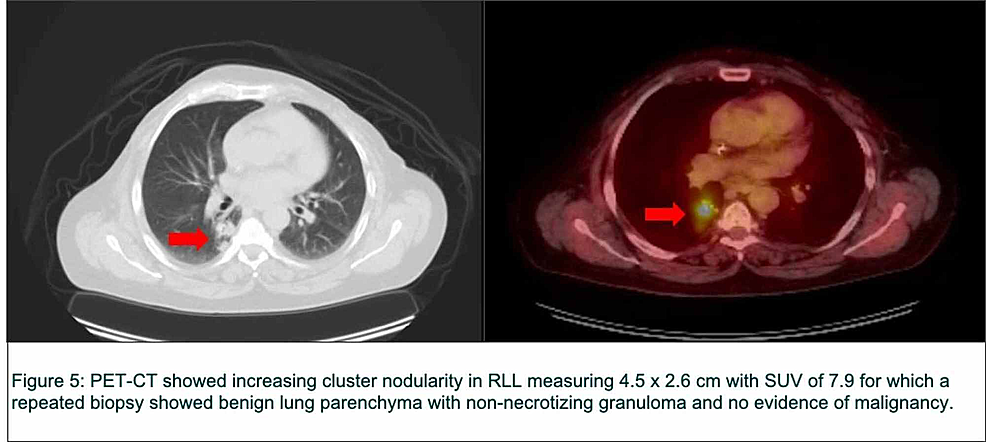 Positron-emission-tomography-computed-tomography-(PET-CT)-images-of-the-lung