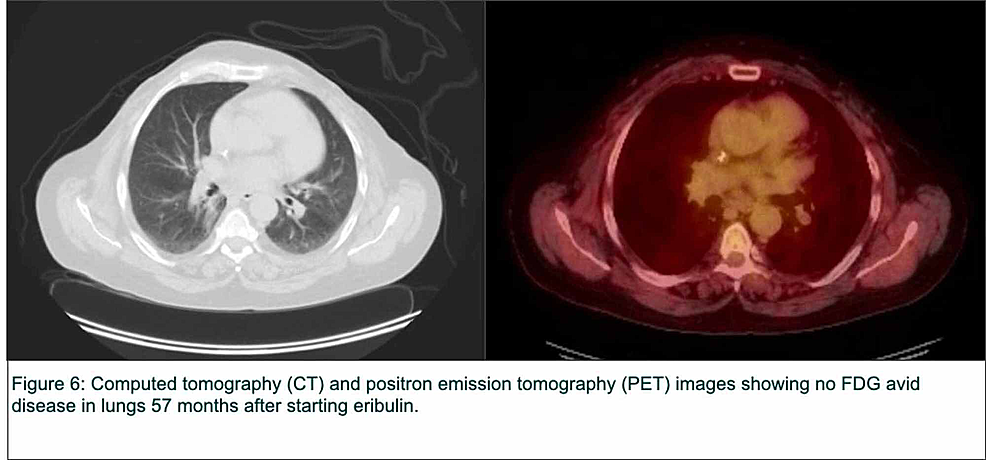 Computed-tomography-(CT)-and-positron-emission-tomography-(PET)-images-of-the-lungs-57-months-after-starting-eribulin