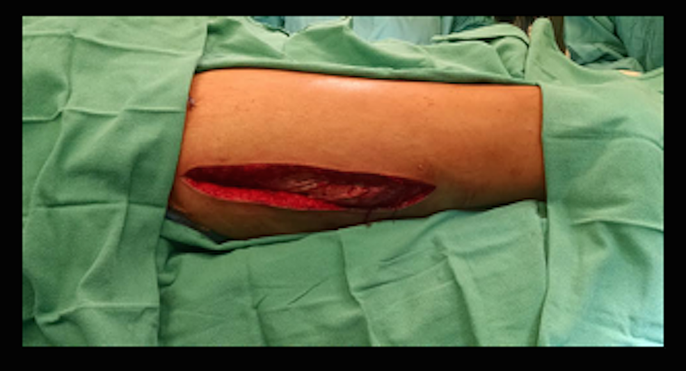 Lateral-Incision-Used-to-Access-the-Anterior,-Lateral-and-Posterior-Thigh-Compartments.