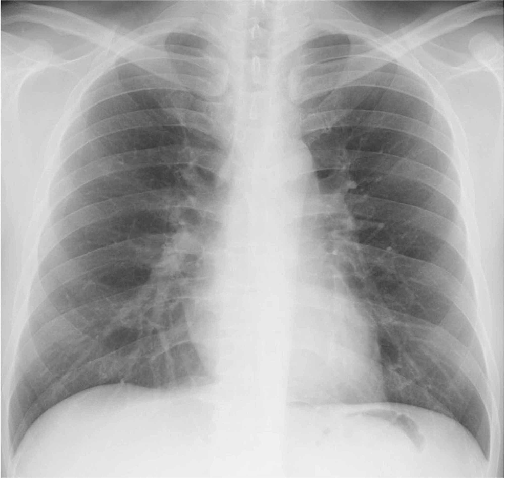 Chest-radiograph