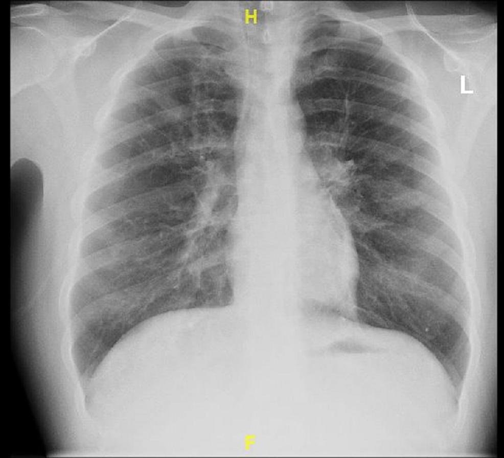 Posterioanterior-Chest-X-ray