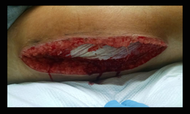 Open-Wound-at-Postoperative-Day-3-Shows-Proper-Healing-Ready-for-Wound-Closure