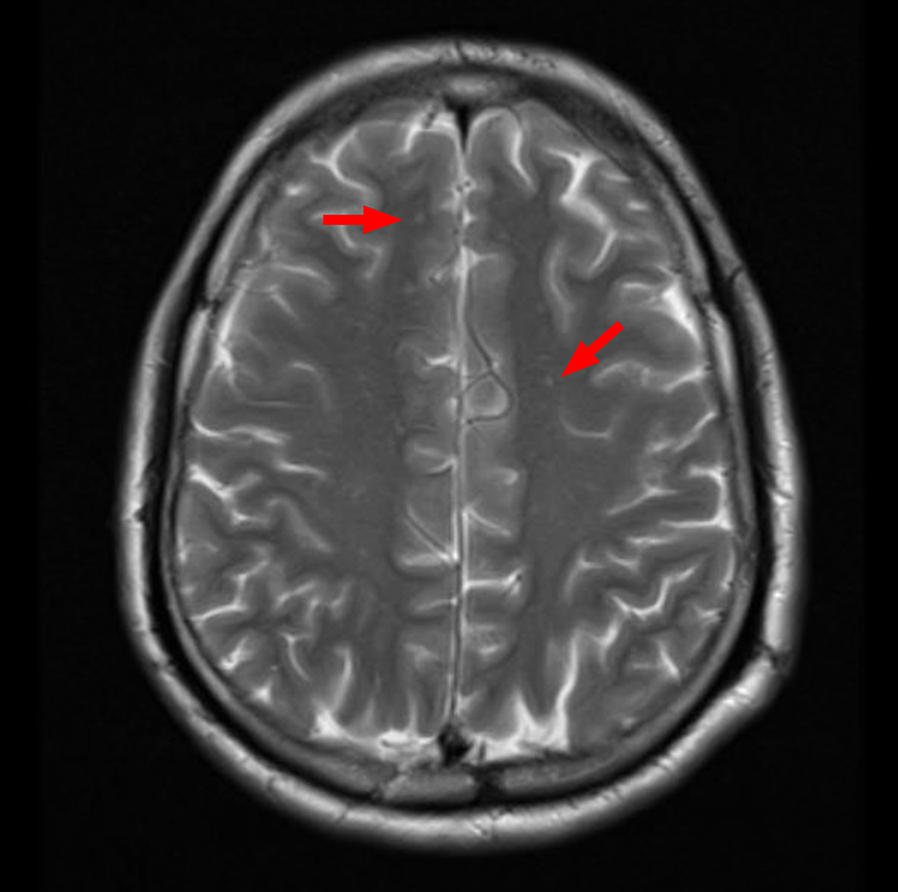 Magnetic-resonance-imaging-(MRI)-of-the-brain