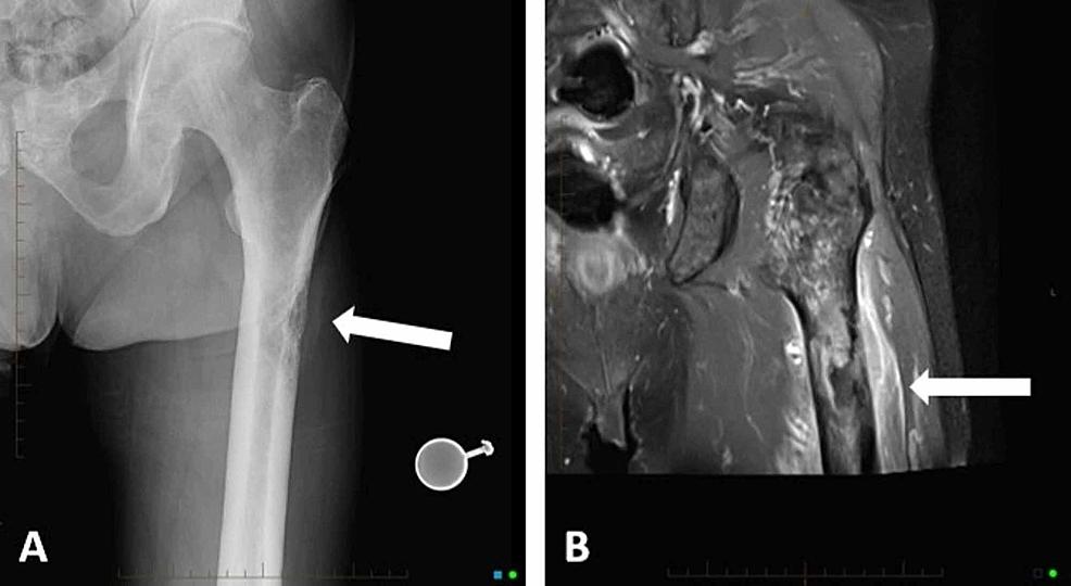 Left-femur-imaging.