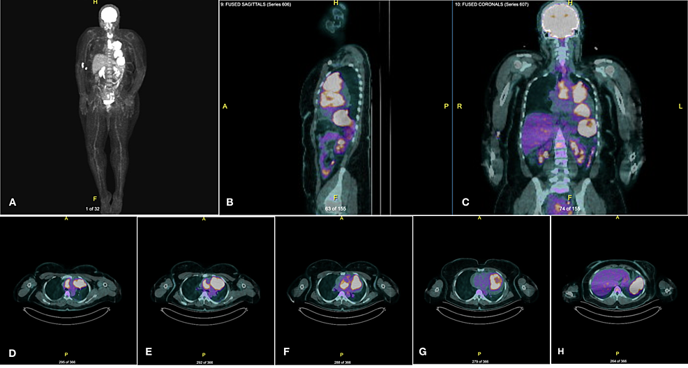 Representative-PET/CT-scan