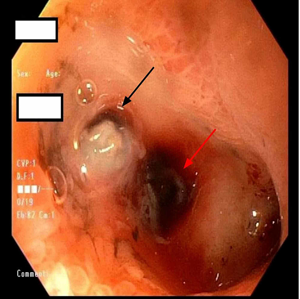 Second-portion-of-duodenum-with-ulcer-(black-arrow)-and-visible-vessel-(red-arrow)-
