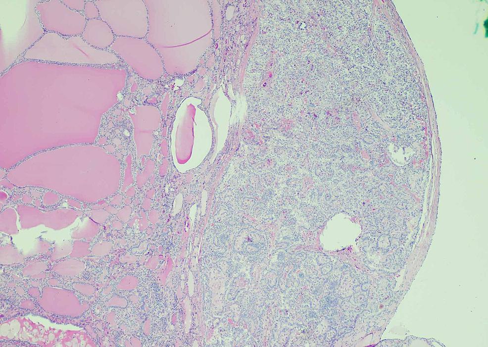 Struma-ovarii-with-papillary-thyroid-carcinoma-(H&E-4X)