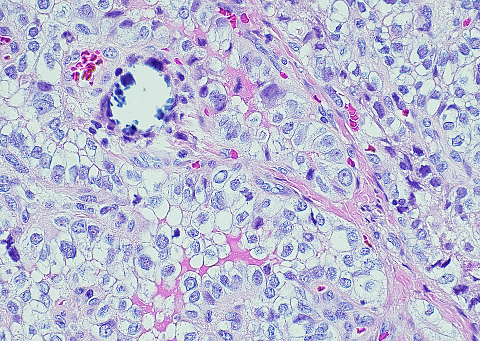 Papillary-thyroid-carcinoma-in-struma-ovarii-(H&E-20X)