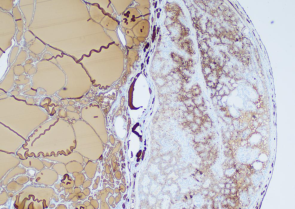 Immunohistochemical-stain-for-thyroglobulin-highlighting-the-thyroid-component-of-struma-ovarii