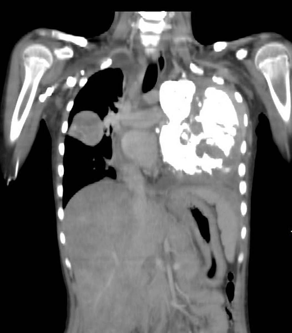 Contrast-enhanced-coronal-reformatted-computed-tomography-(CT)-scan
