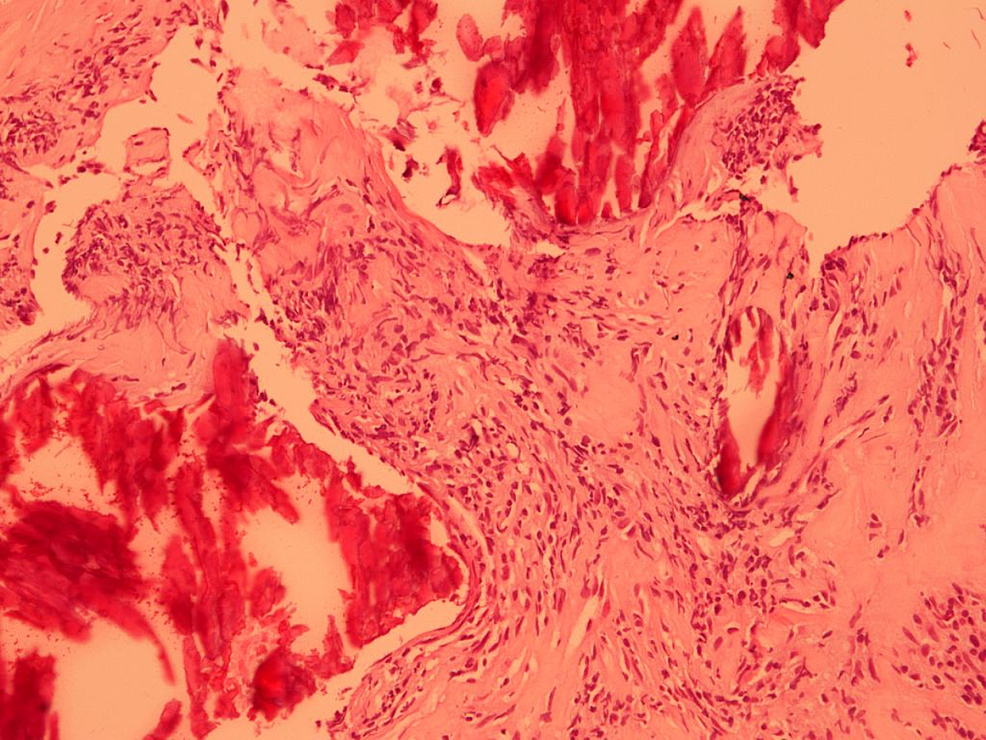 Photomicrograph-of-pulmonary-mass-biopsy