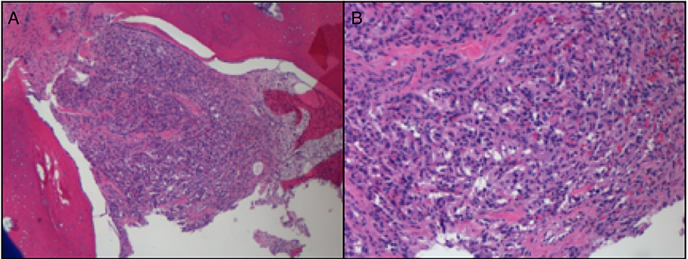 A)-Hematoxylin-and-eosin-(H&E)-stain-demonstrating-bone-infiltrated-by-nests-of-round-to-oval-epithelioid-cells,-surrounded-by-vascular-septae-at-40x-magnification;-B)-H&E-stain-demonstrating-the-tumor-cells-show-abundant-eosinophilic-to-clear-cytoplasm-and-uniform-nuclei-at-100x-magnification