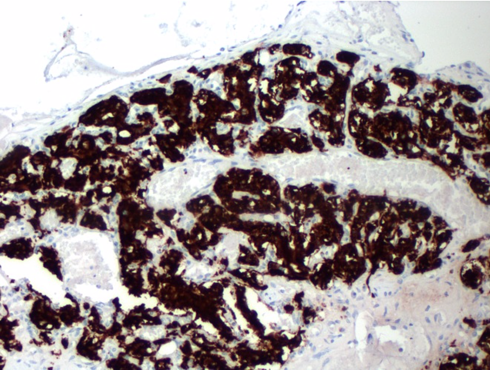 Tumor-cells-demonstrating-intense-positivity-with-synaptophysin-at-100x-magnification