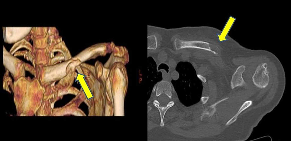 Lytic-mass-lesion-in-the-middle-of-the-left-clavicula-and-pathologic-fracture-in-the-CT-image