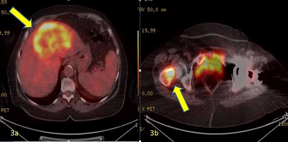 3a:--Hypermetabolic-malignant-mass-with-axial-dimensions-of-12x10-cm-in-the-liver-in-PET-CT;-3b:-Metastatic-mass-in-the-proximal-femur-in-PET-CT