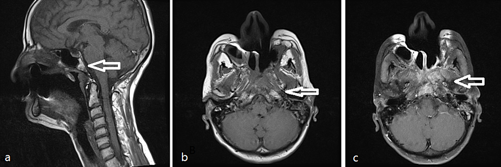 (a,-b,-c)-Selected-sagittal-(a)-and-axial-(b)-T1-WI-shows-left-nasopharyngeal-mass-(white-arrows)-that-infiltrates-the-clivus.-(c)-The-mass-enhances-in-axial-T1-post-gadolinium-image,-note-the-retained-secretion-in-left-mastoid-air-cells.