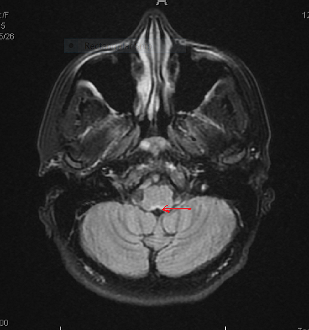 Repeat-MRI-brain-coronal-section-showed-only-old-lesion-at-area-postrema,-no-new-lesions-(arrow-pointing).