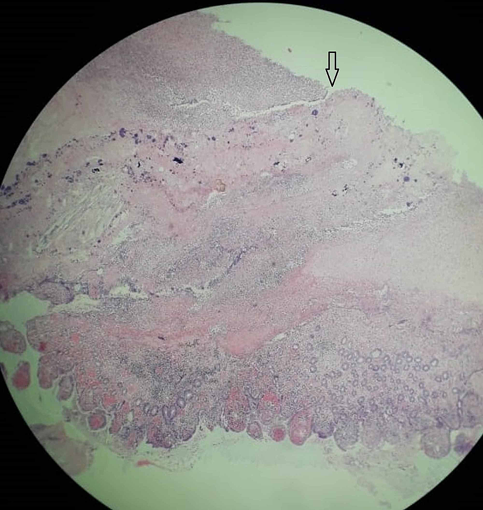 Photomicrograph-(H&E,-x40)-shows-segment-of-perforation-of-ileum-with-focal-surface-ulceration-(arrow),-suppuration,-transmural-inflammation,-and-congested-blood-vessels.