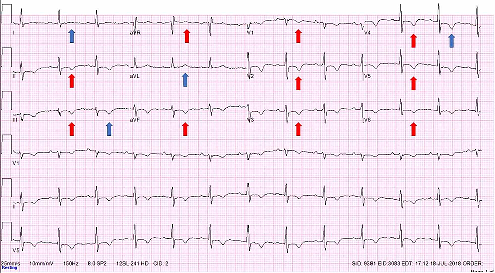 Electrocardiograph-(EKG)-on-initial-evaluation.-No-chest-pain.-Normal-sinus-rhythm-with-diffuse-repolarization-abnormalities-seen-as-T-wave-inversions-in-precordial-and-inferior-leads-and-positive-T-wave-in-aVR