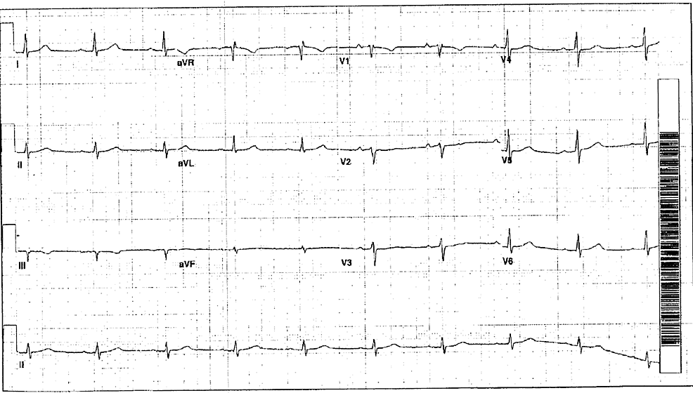 Baseline-electrocardiograph-(EKG)-prior-to-this-presentation.-Normal-sinus-rhythm,-no-T-wave-abnormalities