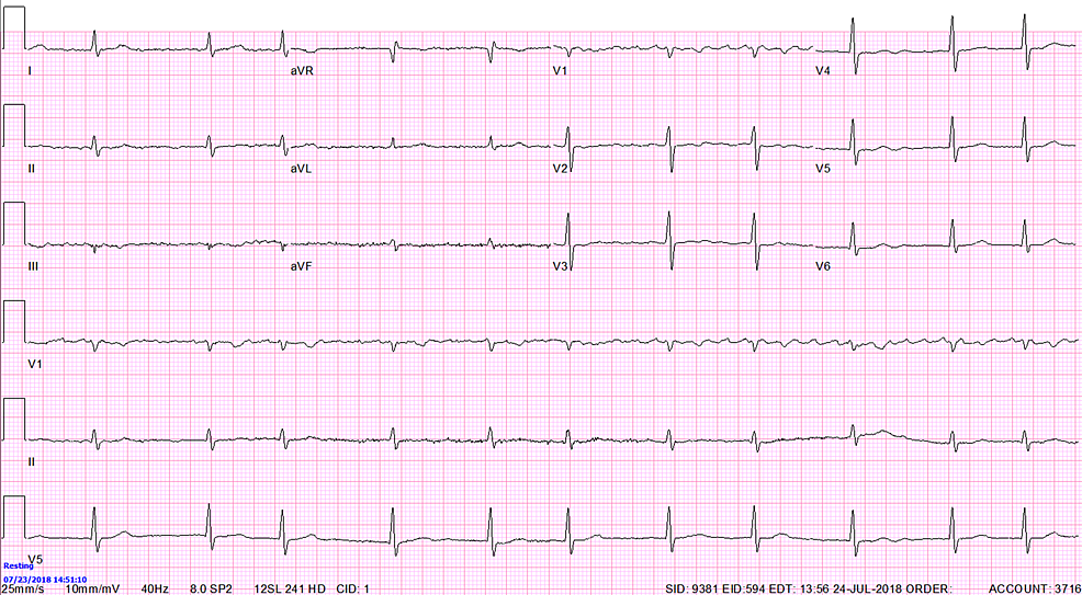 Atrial-fibrillation-with-ventricular-rate-of-66-with-no-T-wave-abnormalities