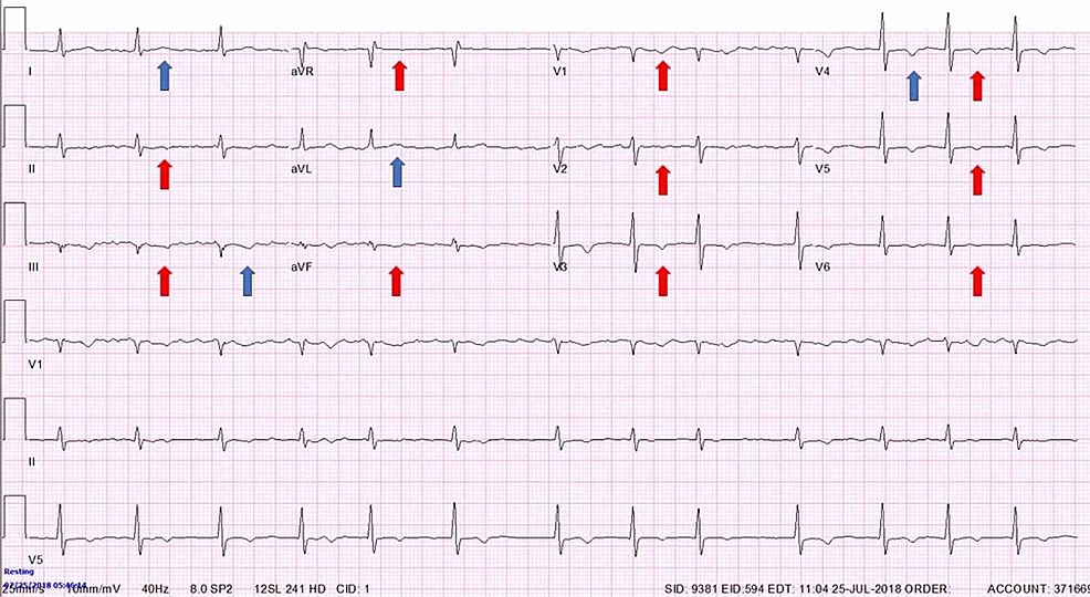 Atrial-fibrillation-with-ventricular-rate-of-around-88-with-diffuse-repolarization-abnormalities-seen-as-T-wave-inversions-in-precordial-and-inferior-leads