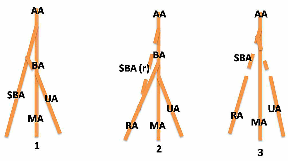 Embryologic-development-of-upper-limb-arteries-and-possible-explanation-of-high-bifurcation-of-the-brachial-artery
