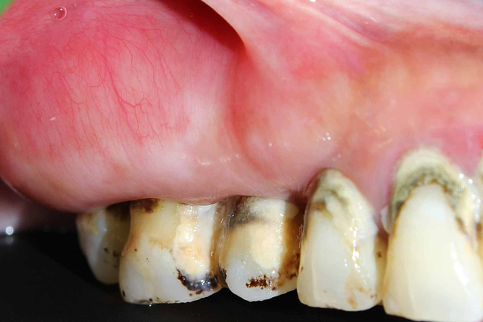 Pre---Operative-Image-of-the-Lesion-extending-from-#14-to-#17