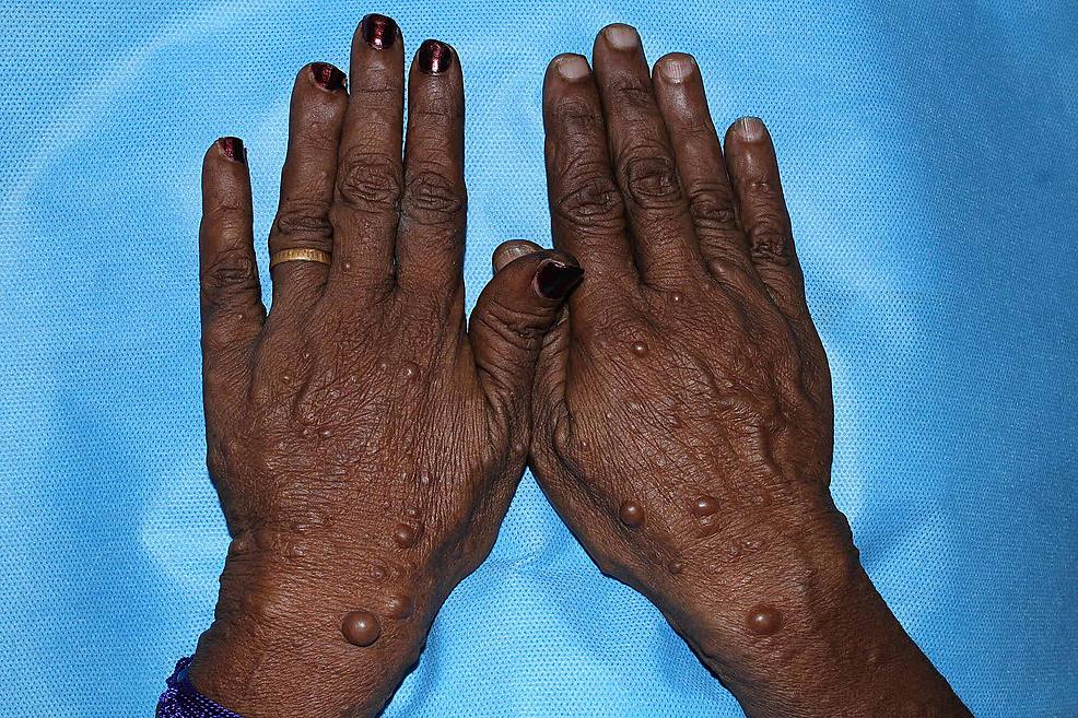 Extra-Oral-Features-:-Neurofibramatosis-present-on-the-Dorsum-of-Hands