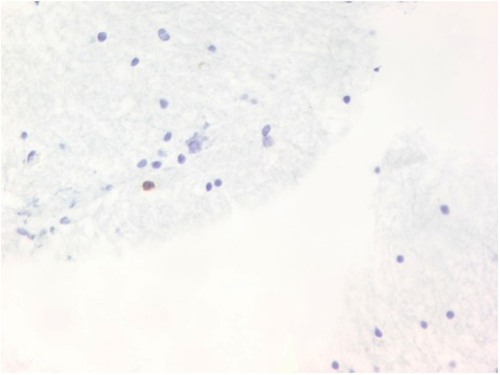 Biopsy-shows-basophilic-parasites-in-cysts.