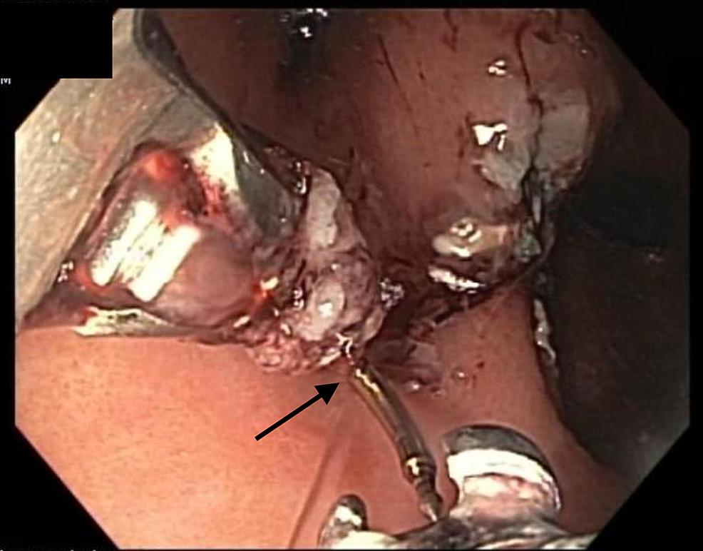 Endoscopic-image