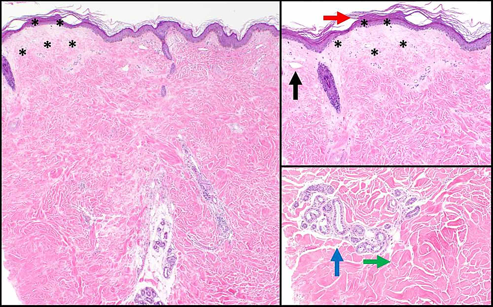 Histologic-findings-consistent-with-lichen-sclerosus-overlying-superficial-morphea