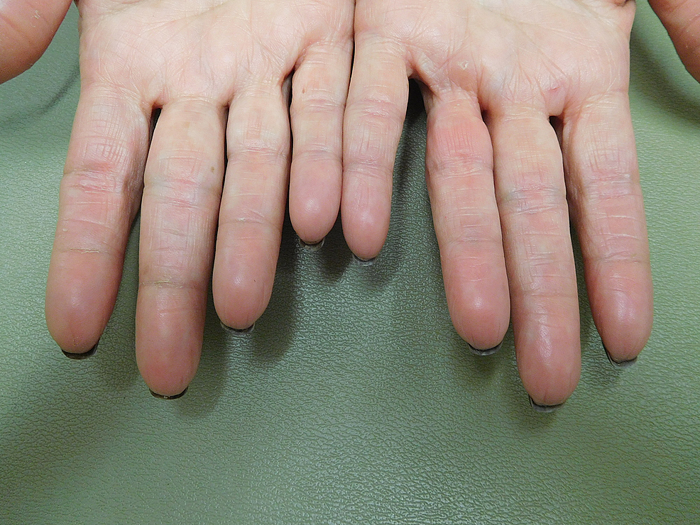 Cureus Capecitabine Associated Loss Of Fingerprints Report Of Capecitabine Induced Adermatoglyphia In Two Women With Breast Cancer And Review Of Acquired Dermatoglyphic Absence In Oncology Patients Treated With Capecitabine