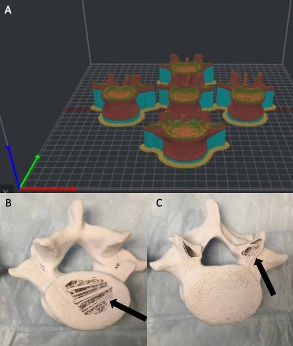 Vertebral-model-orientation-in-anatomical-position-in-relation-to-the-print-bed.-