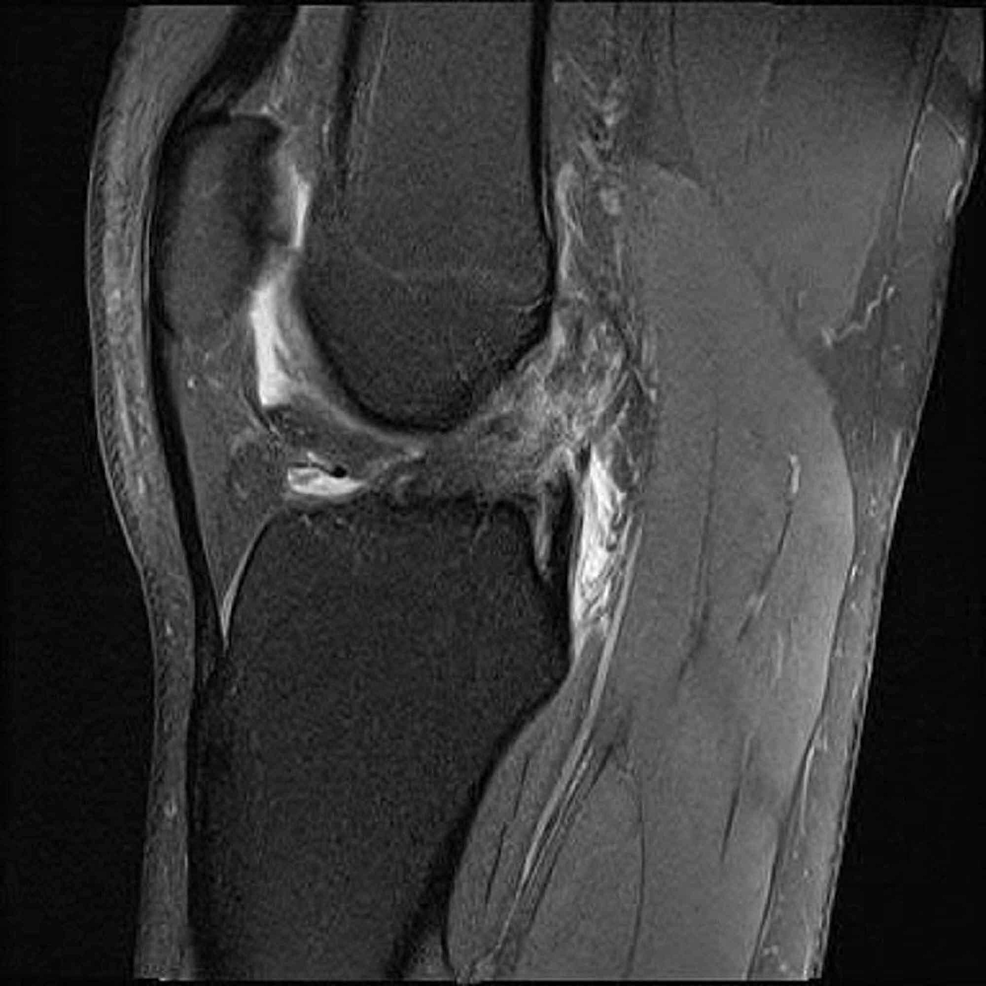 Magnetic-resonance-imaging-(MRI)-confirming-an-anterior-cruciate-ligament-(ACL)-tear-with-associated-bone-contusions-in-Patient-A