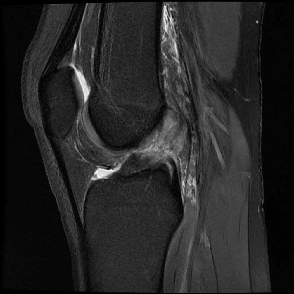 Magnetic-resonance-imaging-(MRI)-which-showed-a-complete-anterior-cruciate-ligament-(ACL)-tear-with-associated-bone-contusions-in-Patient-B